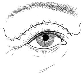 La suture de la paupière lors d'une blépharoplastie
